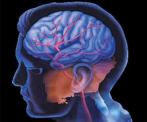 22jul_brain.jpg