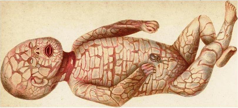 Harlequin_fetus.JPG