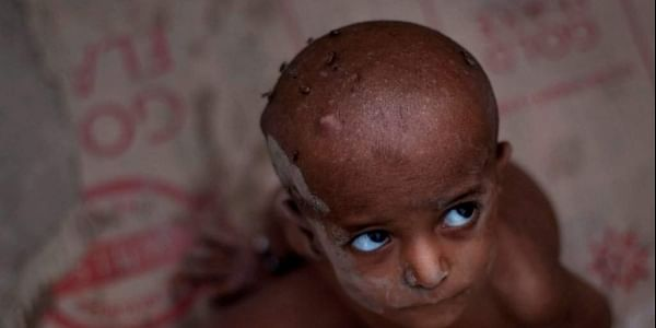 New hunger statistics were compiled before floods that displaced this Pakistani boy and his family.