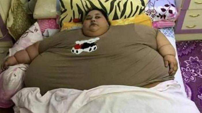 Egyptian named 'world's heaviest woman' smiling again after surgery