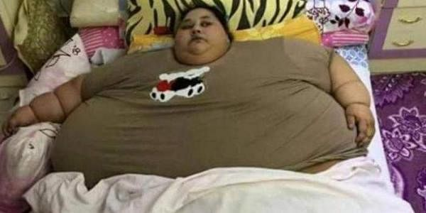 Eman Ahmed earlier weighed half-a-tonne and was regarded the world's fattest woman alive. (Courtesy: hotklop.blogspot.in)
