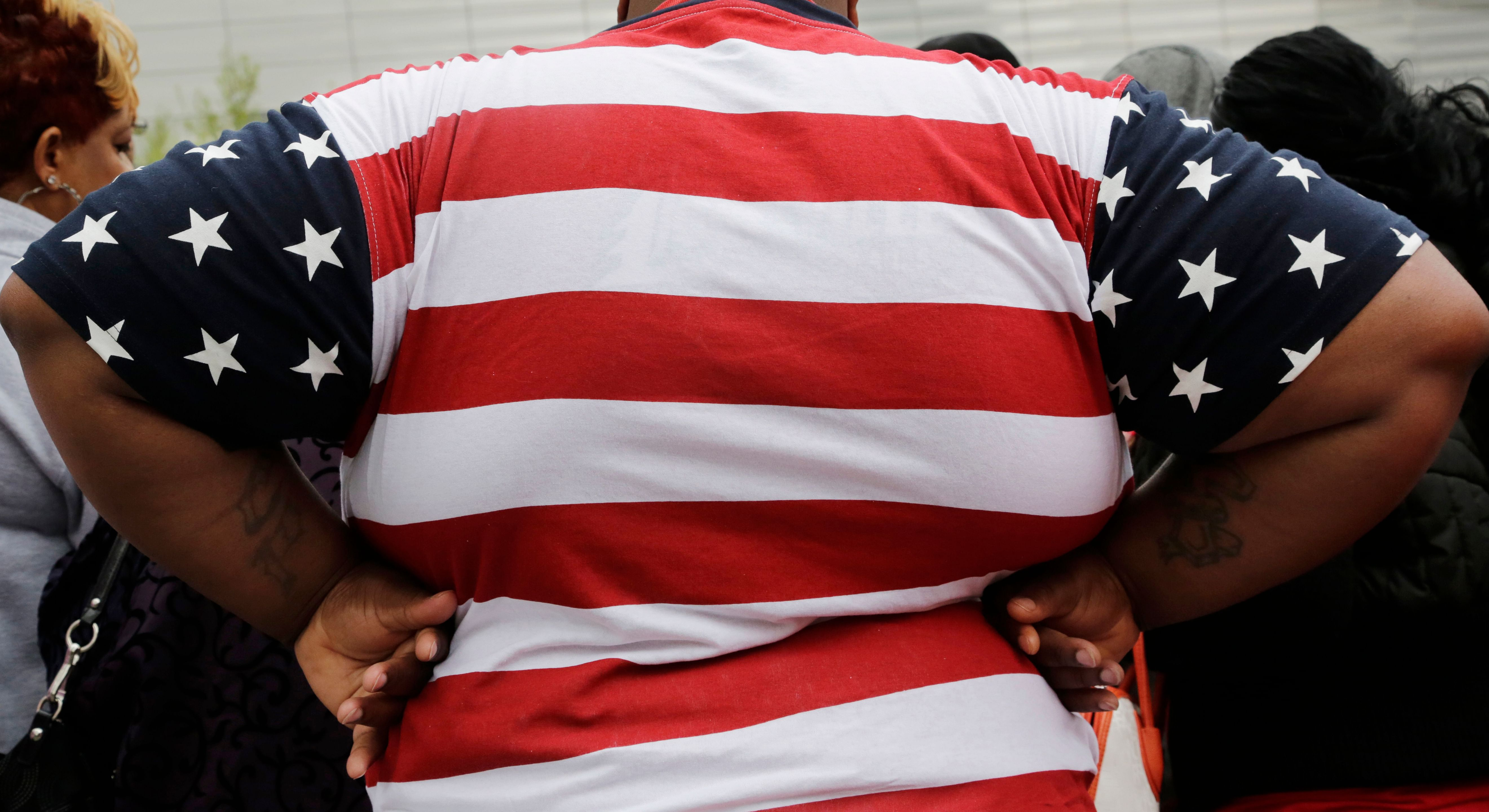 Study shows so-called 'healthy obesity' is harmful to cardiovascular heath