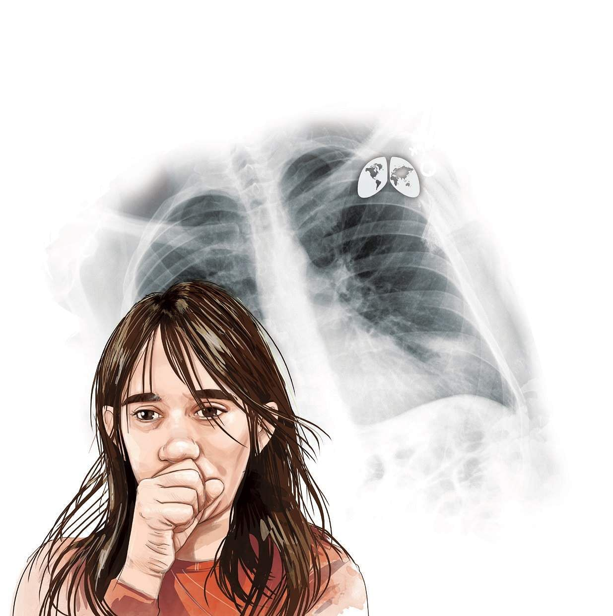 Study Links Using Bleach To Potentially Fatal Lung Disease