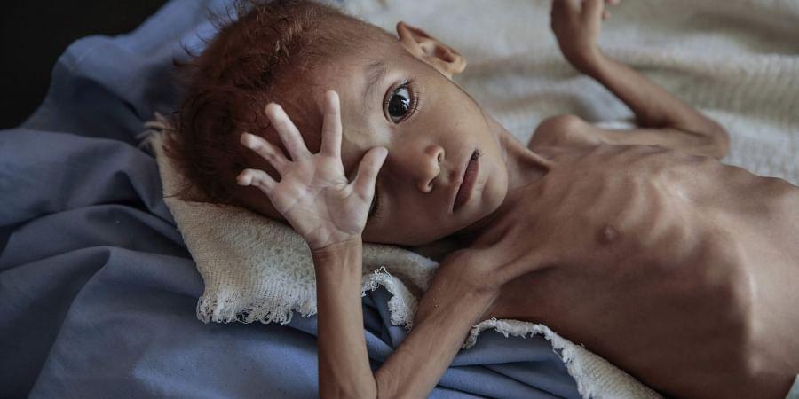 Yemen starvation