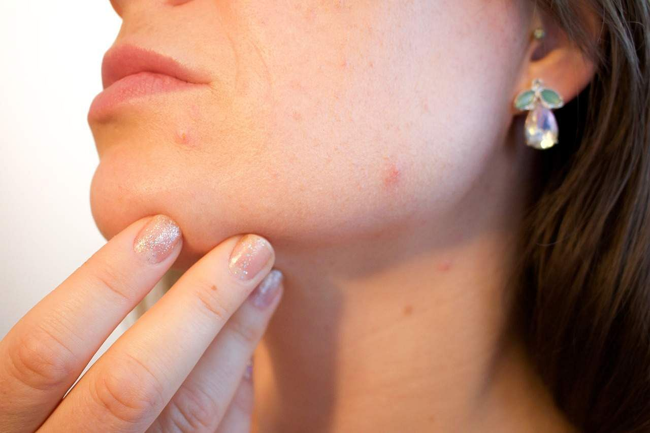 Acne associated with increased risk of depression