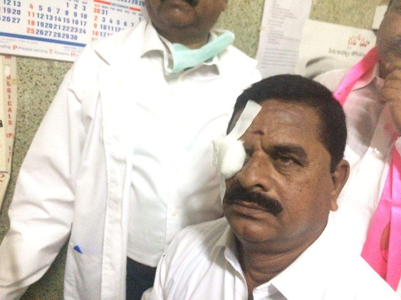 Komatireddy throws headphones in TS Assembly! TRS MLC Swamy Goud eye injured!