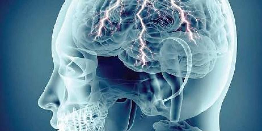 brain, epilepsy, brain scan
