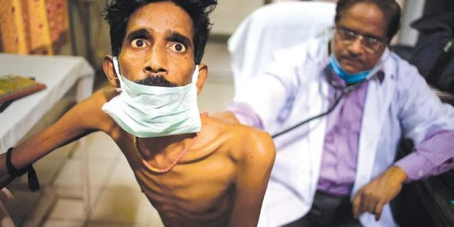 Tuberculosis is spread by the bacteria Mycobacterium tuberculosis which mainly affects the lungs but also other parts of the body. Image used for representational purpose.