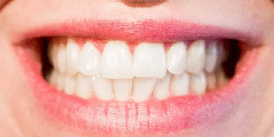 Teeth image used for representation