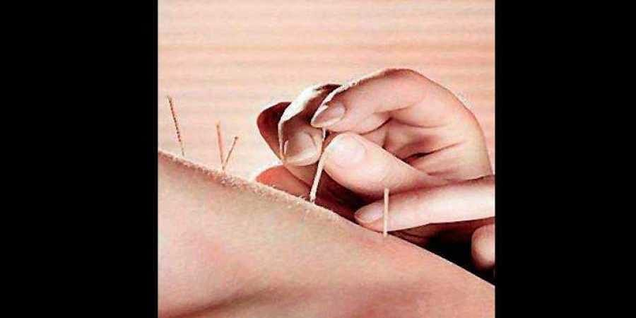 Centre set to recognise acupuncture as system of medicine