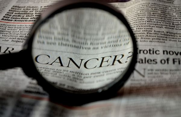 Rise In Cases Of Colorectal Cancer In Kerala Leaves Medical Experts Worried The New Indian Express