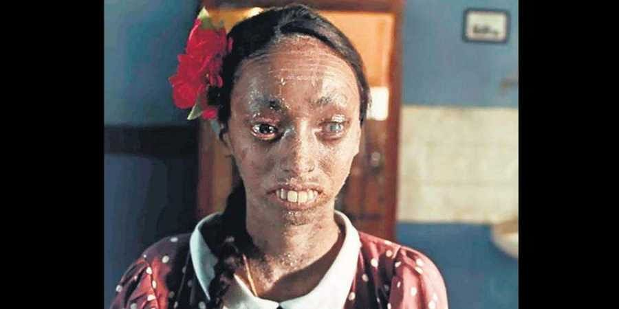 Nisha Lobo was born with a rare genetic condition called ichthyosis.