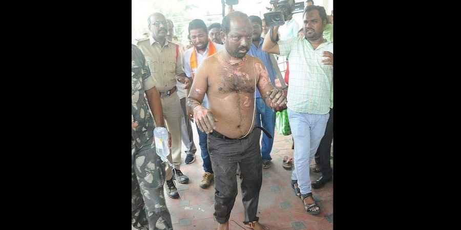BJP leader Bingi Srinivas suffer burn injuries during protest against the the sexual assault and murder of a nine-month-old girl in Warangal.