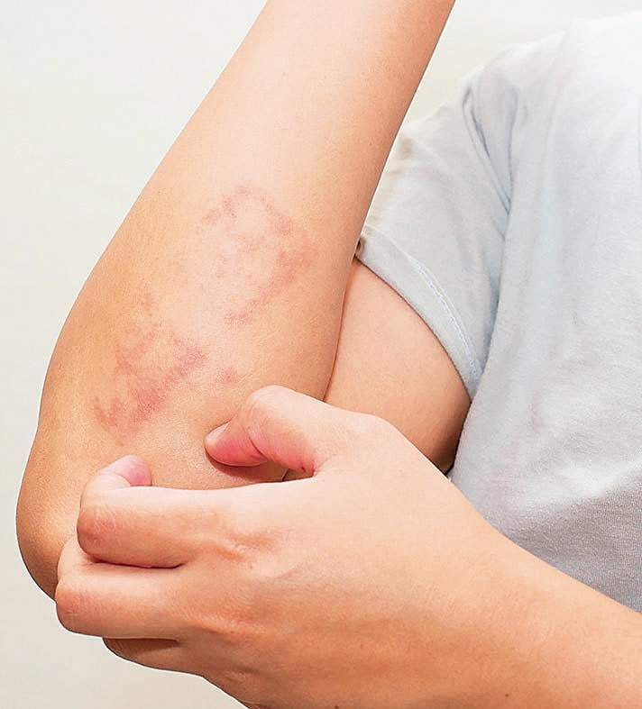 Psoriasis cannot be cured but controlled with biological therapies.