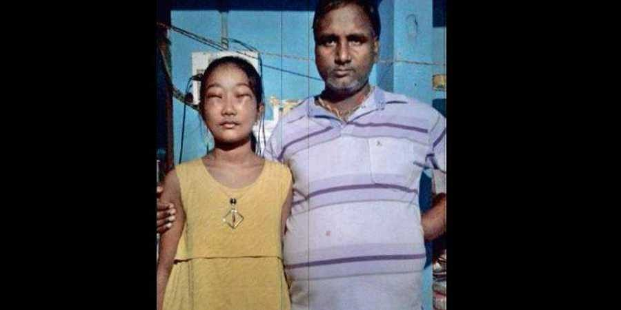 13-year-old Odisha girl battles with rare disease forcing her eyes to remain shut