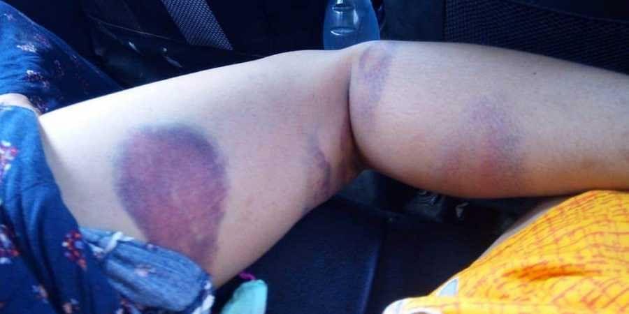 Police brutality case