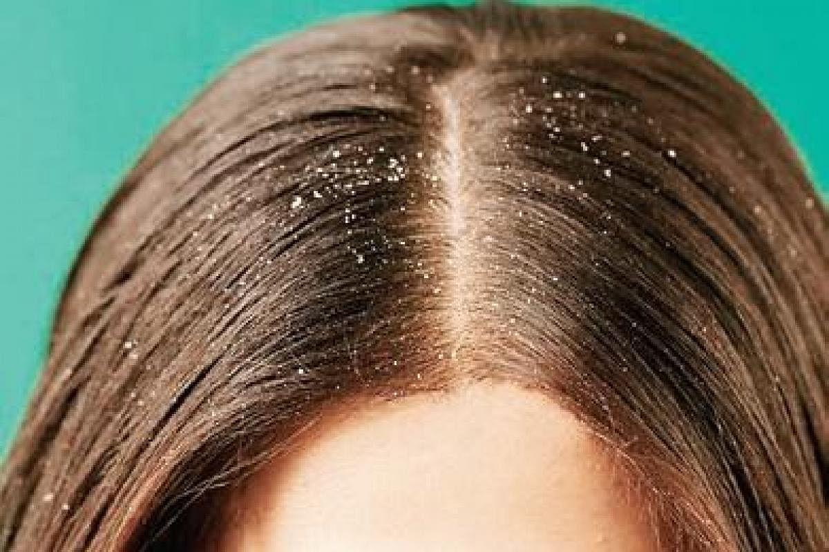 Dry scalp treatment with honey   Honey beauty tips ~Morningkoffee.com