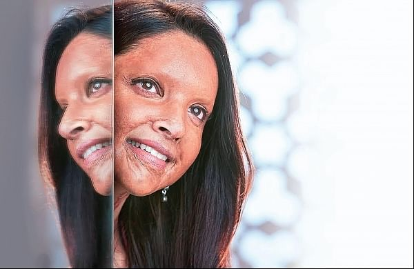 Deepika Padukone trolled for turning 'Chhapaak' look into TikTok challenge