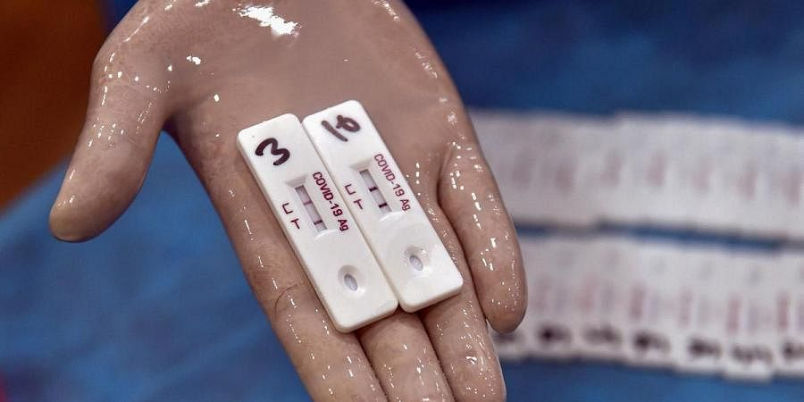 Coronavirus, covid testing,  Delhi