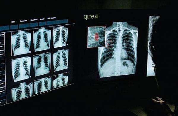 Nemom taluk hospital near Thiruvananthapuram gets digital X-ray unit