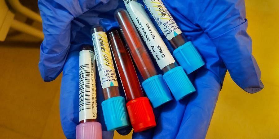 Coronavirus Blood Samples