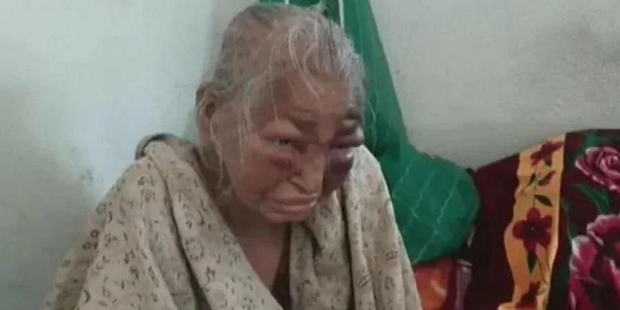 A BJP worker and his 85-year-old mother were allegedly beaten by miscreants in Bengal