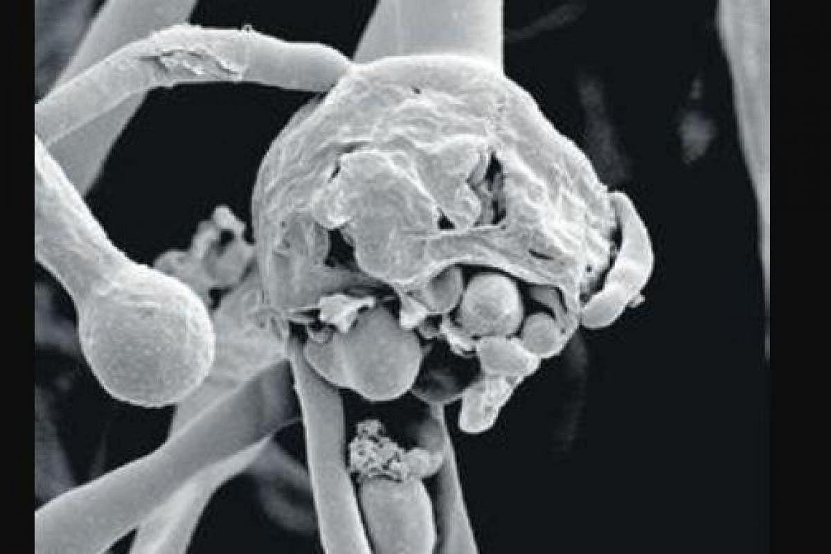 ఏపీలో బ్లాక్ ఫంగస్కు చికిత్స అందించే ఆసుపత్రులు ఇవి